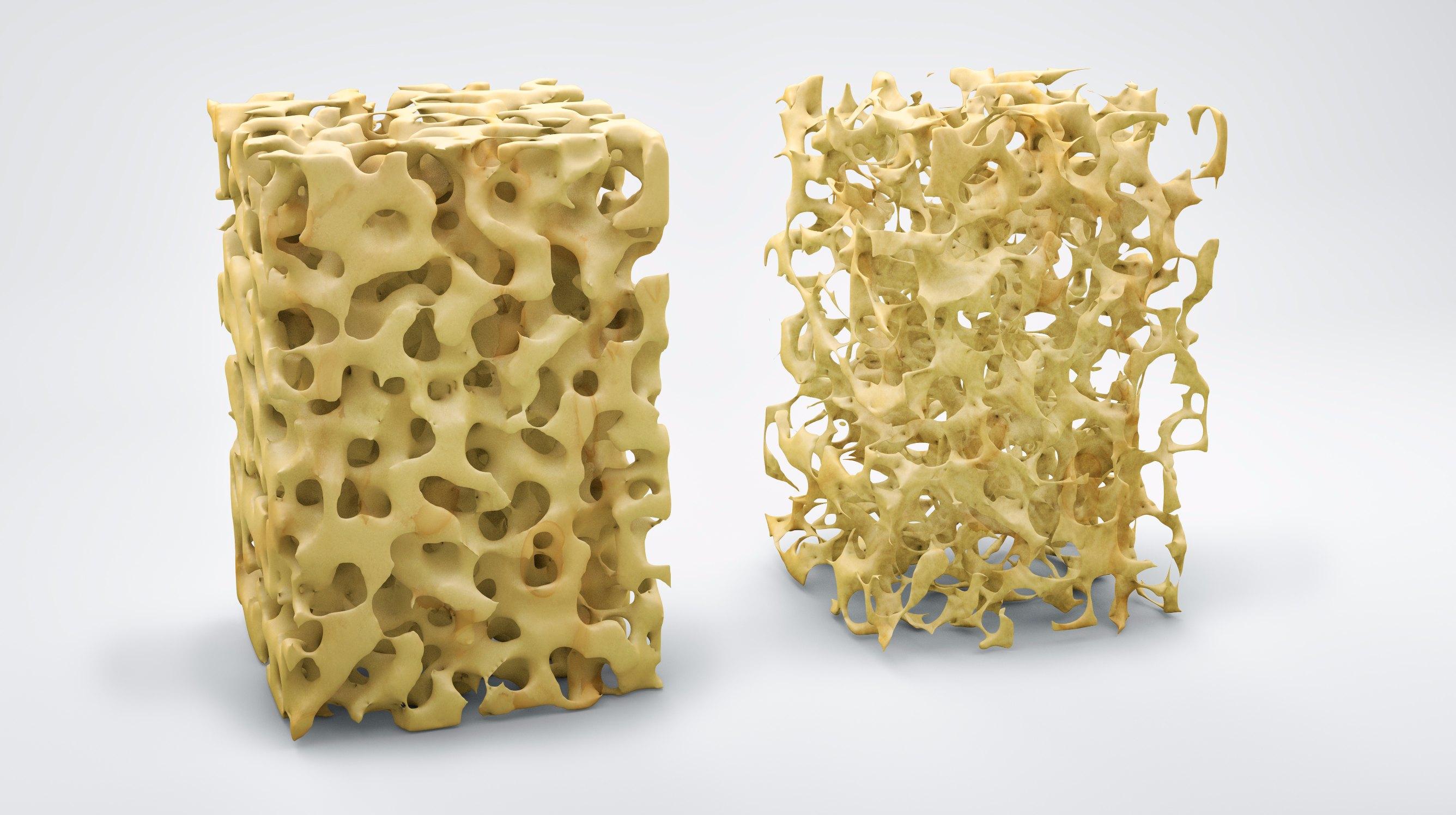 Osteoporosis Photo