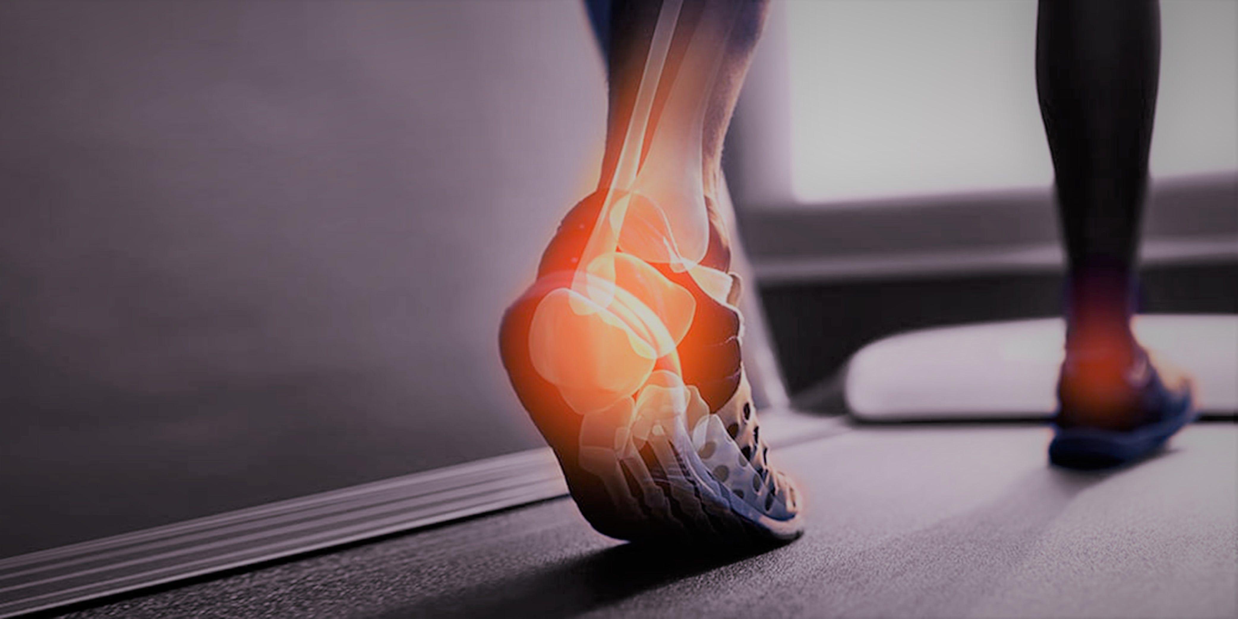 Orthopedic trauma Photo