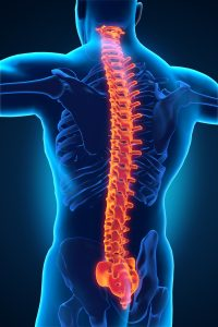 Spine Disorders / Spine Injuries Photo