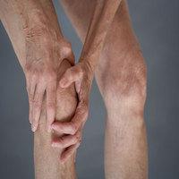 Osteoarthritis Photo