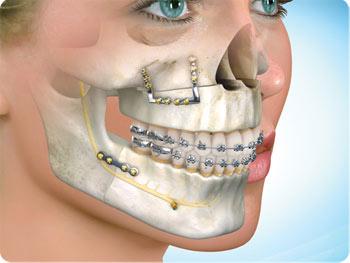 Oral & Maxillofacial surgery (OMS) Photo