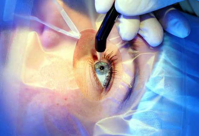 Ophthalmic Surgery Photo