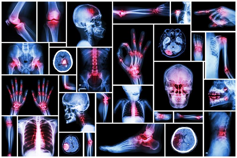 Orthopaedic Surgery Photo