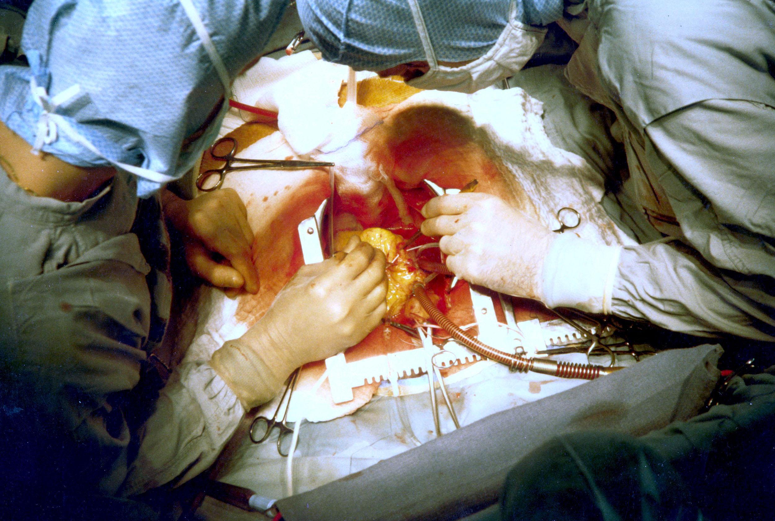 Biomaterials in Transplantation Photo