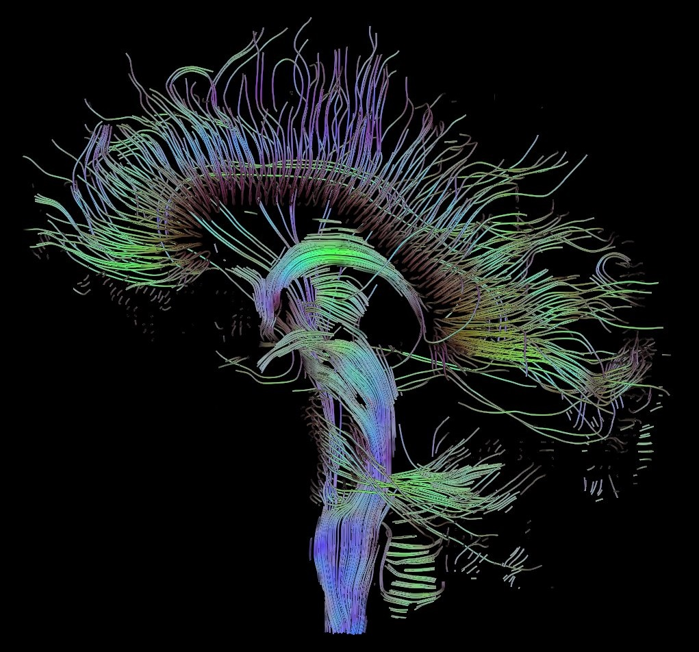 Neural Engineering Photo