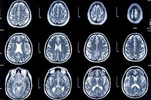 Neuroradiology and Imaging Photo