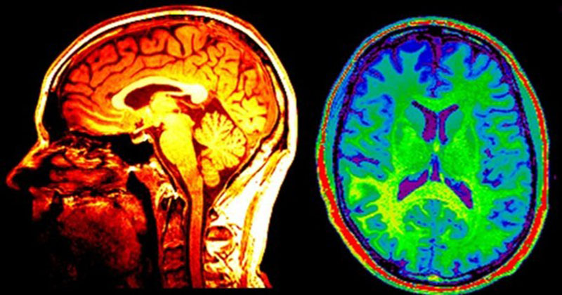 Neuroimaging and Radiology Photo