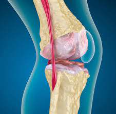 Stem cell therapy for Osteoarthritis Photo