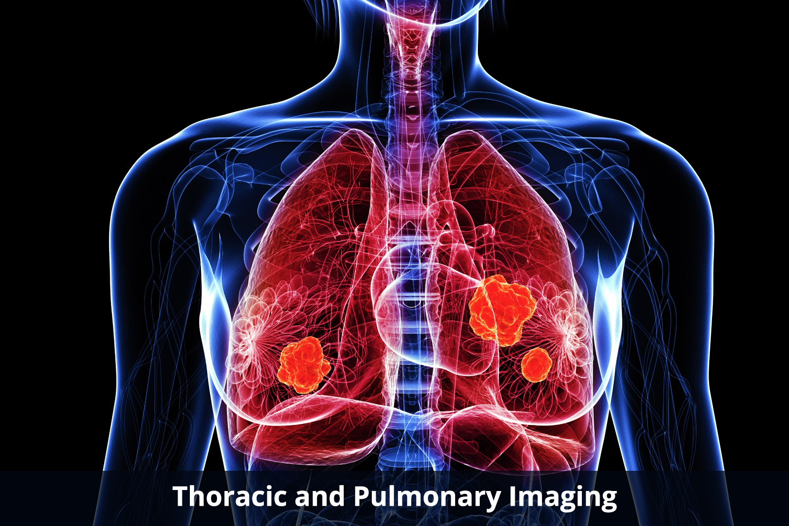 Thoracic Pathology & Pulmonary Pathology Photo