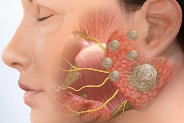 Otorhinolaryngology and Cancer   Photo