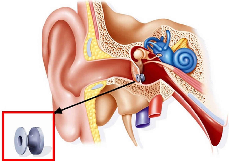 Myringotomy / Ear Surgery Photo