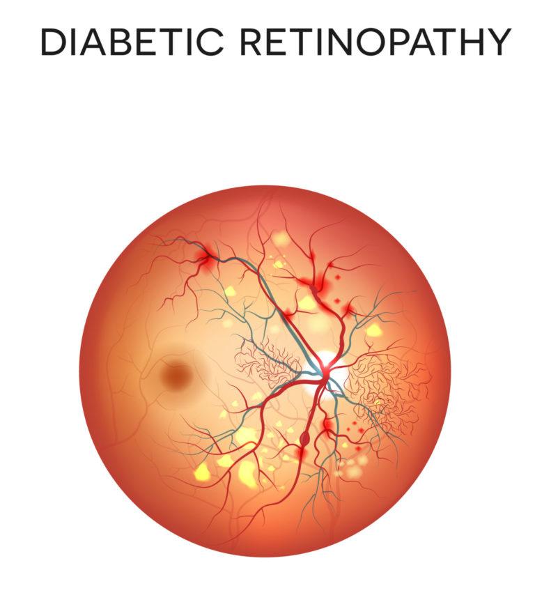 Etiology of Diabetes Mellitus Photo