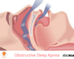 Snoring and Obstructive Sleep Apnea Photo