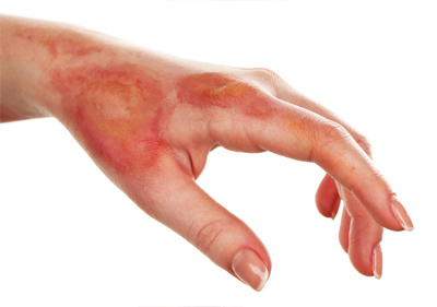 Burns and Advanced Wound Care Photo