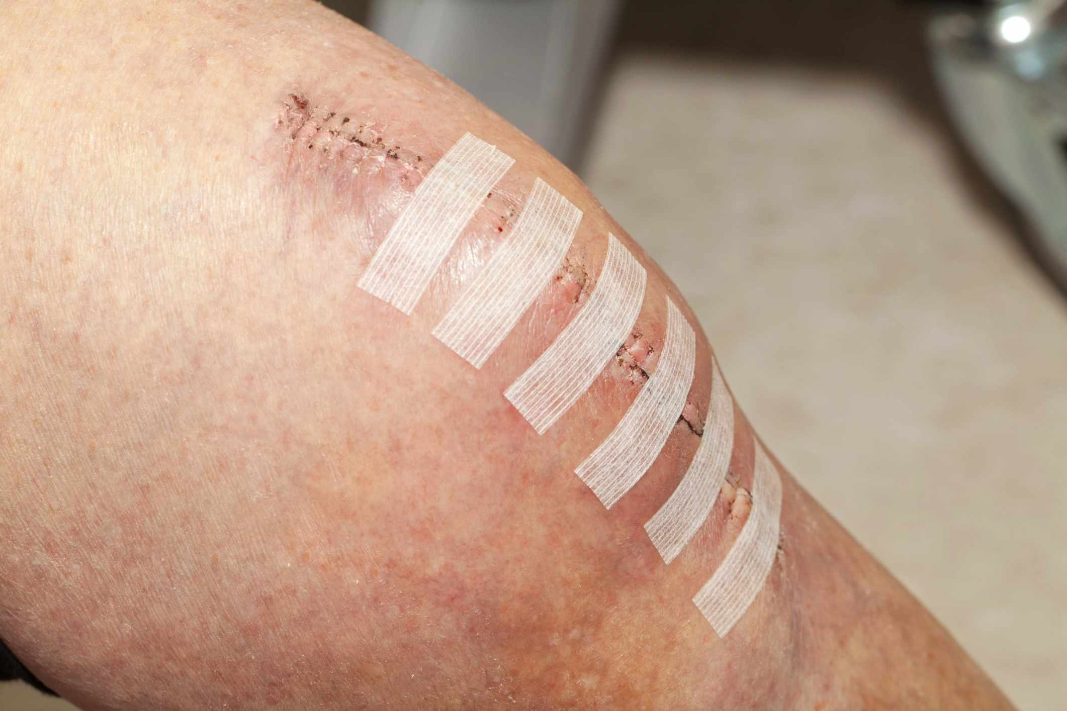 Surgical Wound Care Photo