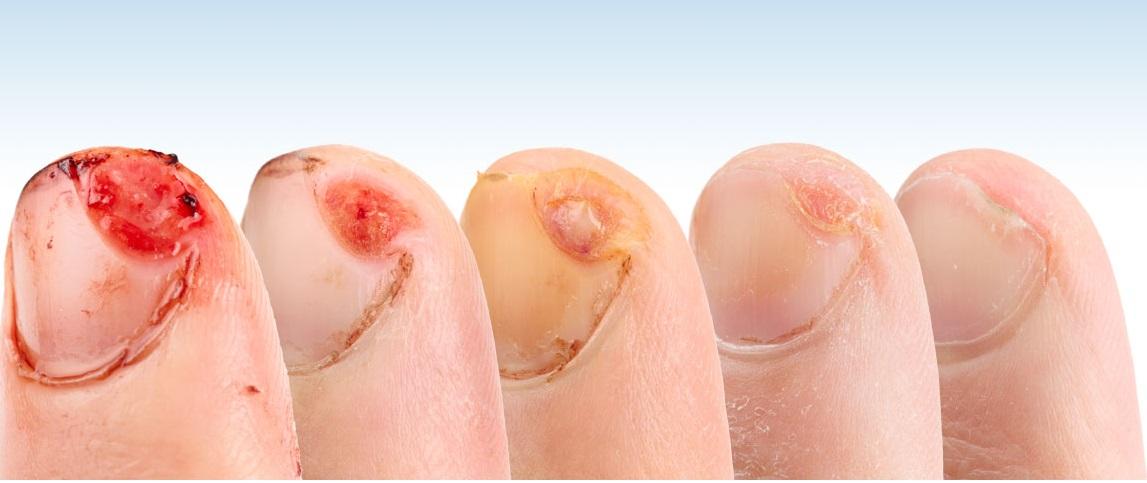 Wound Healing & Tissue Regeneration Photo