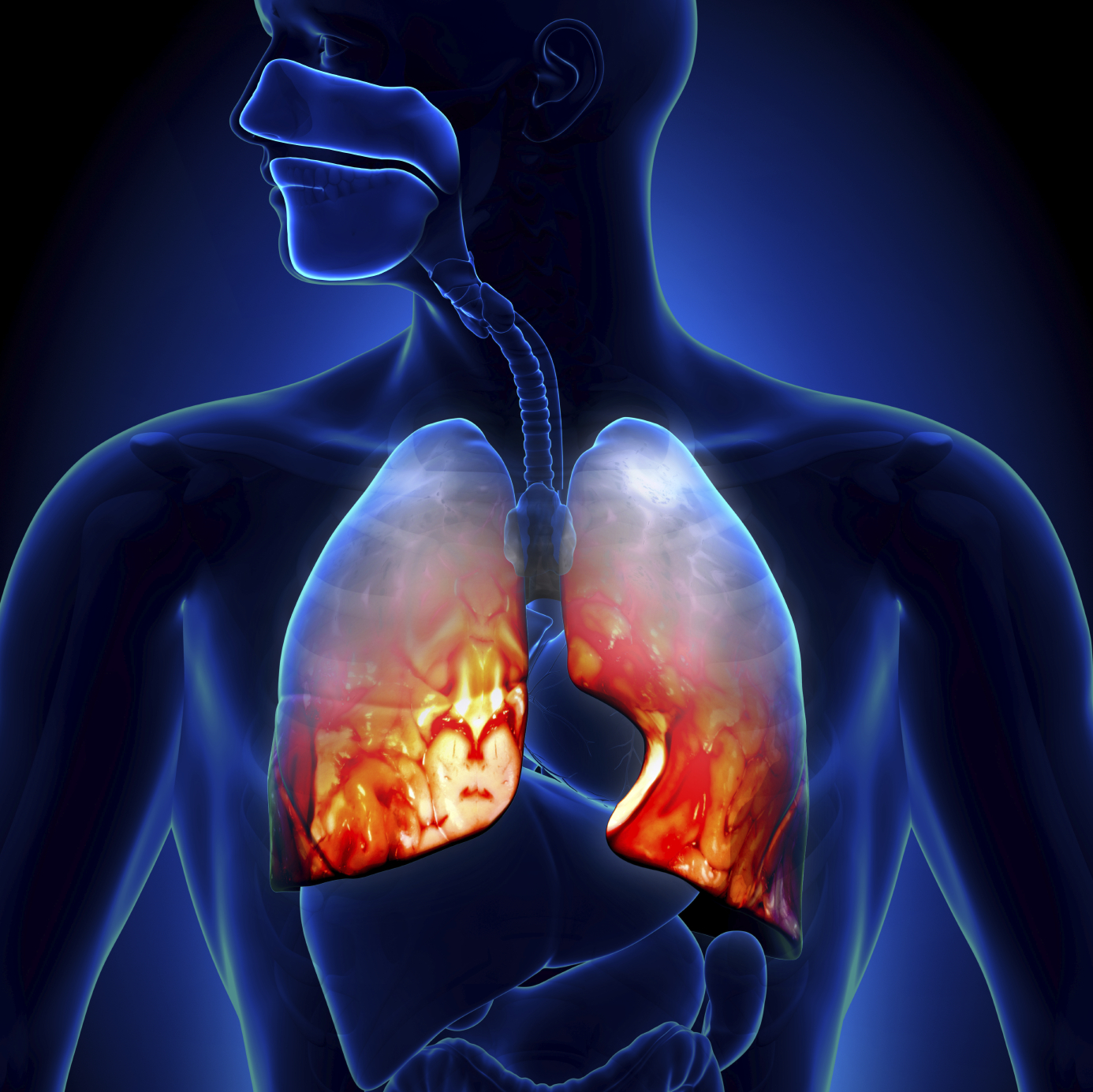 Pulmonary Drug Discovery and Therapy Photo
