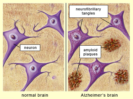 Amyloid Protein in Dementia Photo