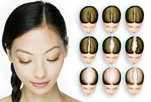 Hair Transplantation Photo