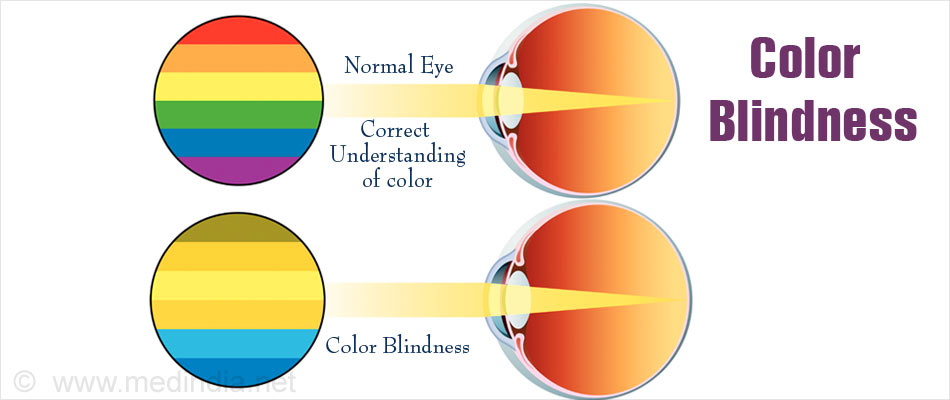 Colour Blindness and Night Blindness Photo