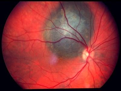Ocular Oncology  Photo