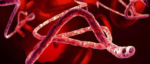 Ebola Virus Disease(EVD) and Zika viral infections Photo