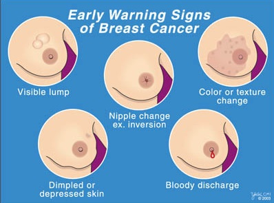 Breast Cancer Signs & Symptoms  Photo