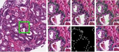Digital pathology Photo