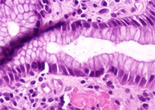 Gastrointestinal pathology Photo