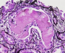 Renal pathology Photo