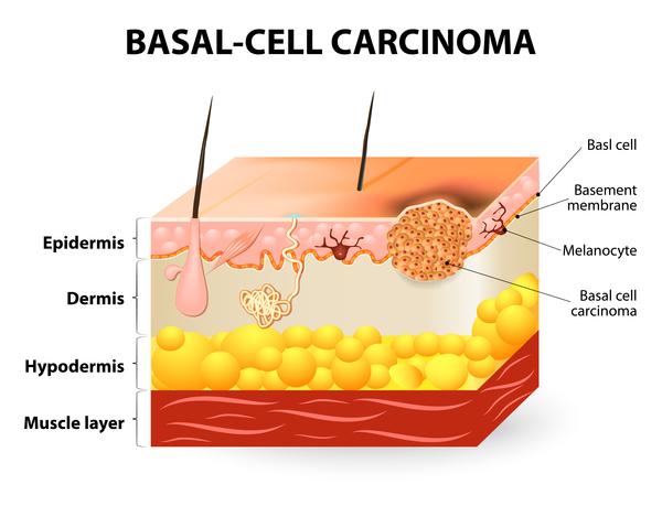 Carcinoma Photo