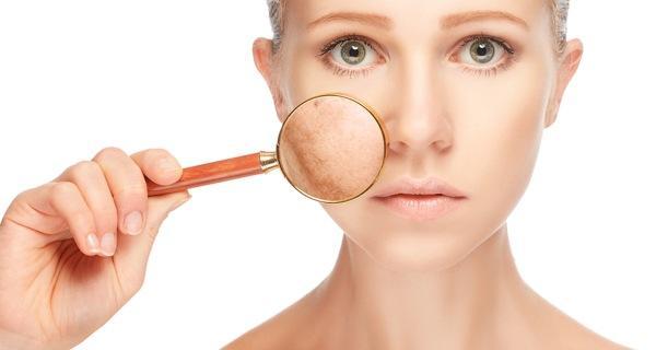 Skin Pigment Disorders Photo