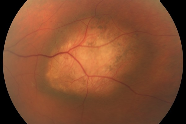 Intraocular Cancer  Photo