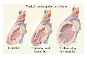 Cardiac Remodeling or Ventricular Remodeling Photo