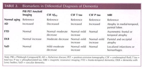 Bio markers in Dementia  Photo