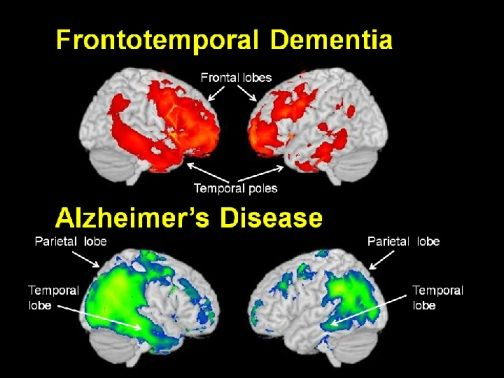Alzheimer's and Vascular Dementia Photo