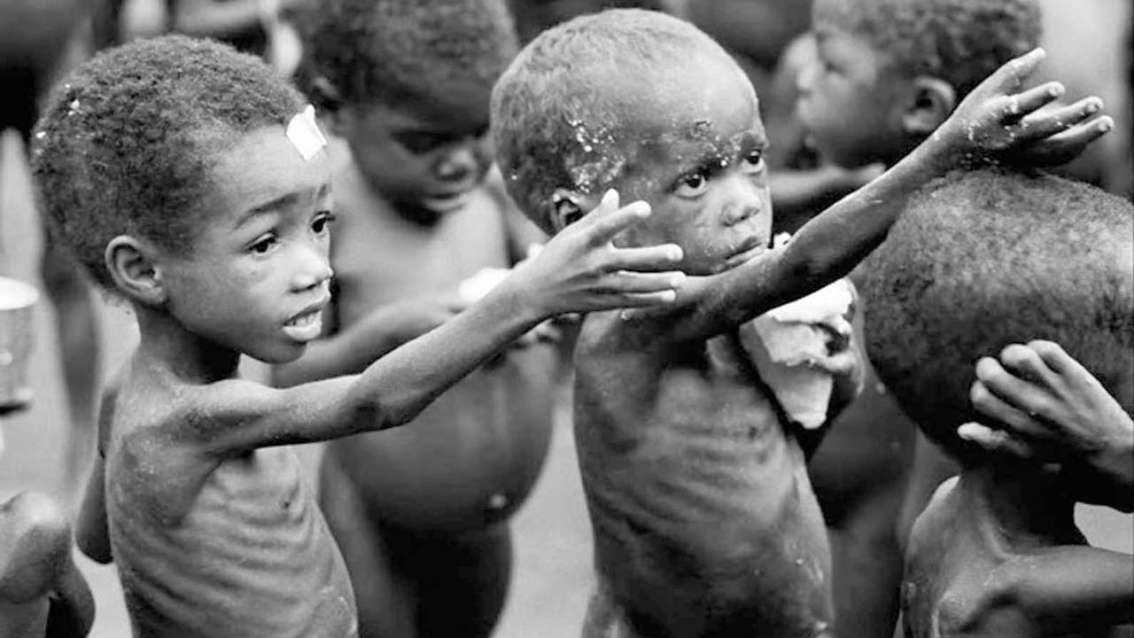Malnutrition Photo