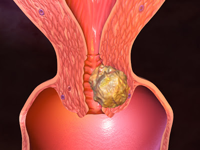 Gynecologic Oncology and Case Reports Photo