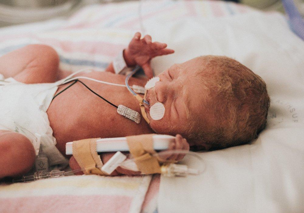 New-born Respiratory disorders Photo