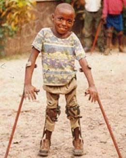 Poliomyelitis And Rhinovirus Global Events Usa Europe