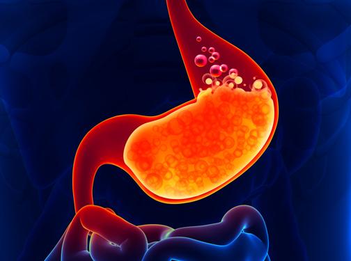 Gastroesophageal Reflux Disease Photo
