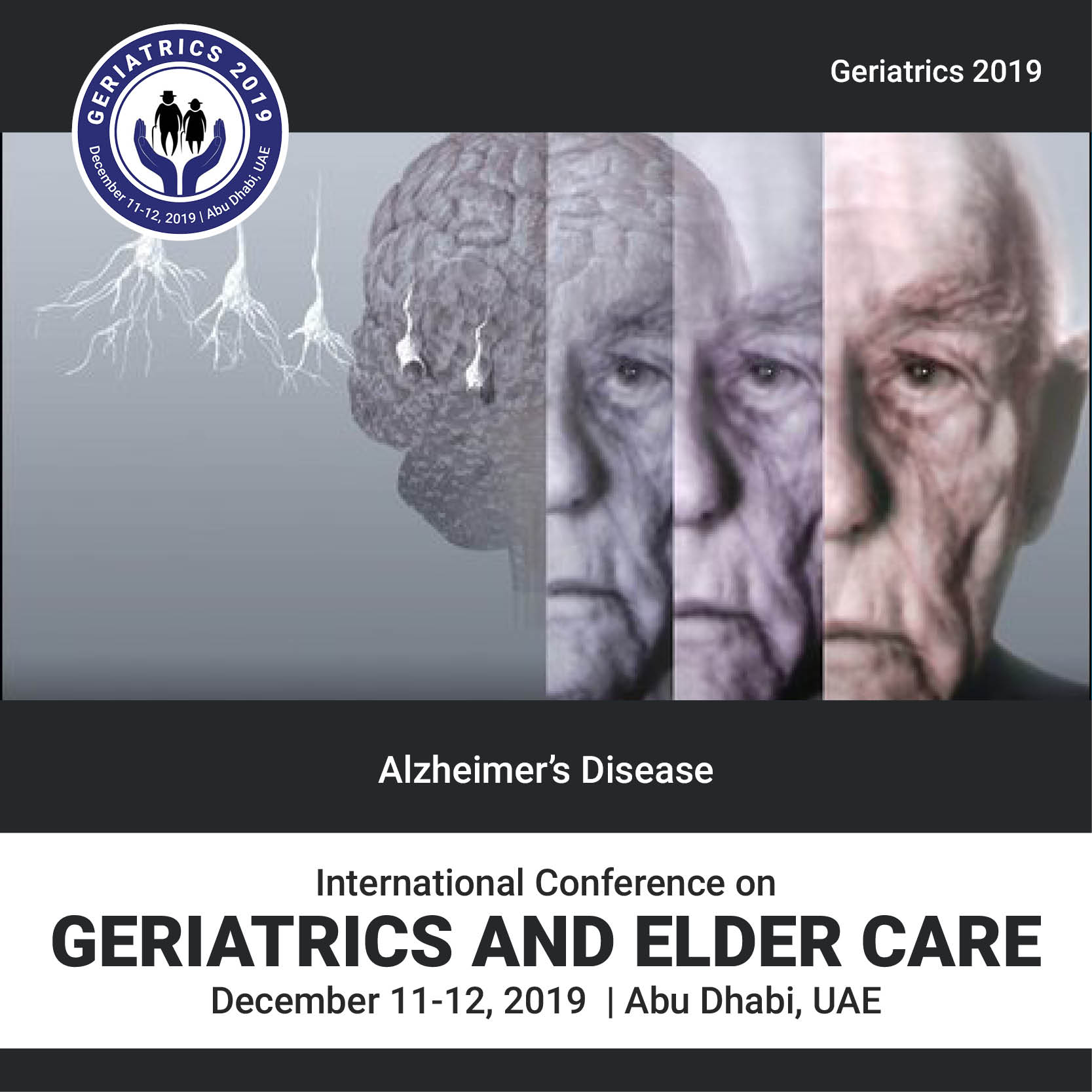 Alzheimer's Disease  Photo