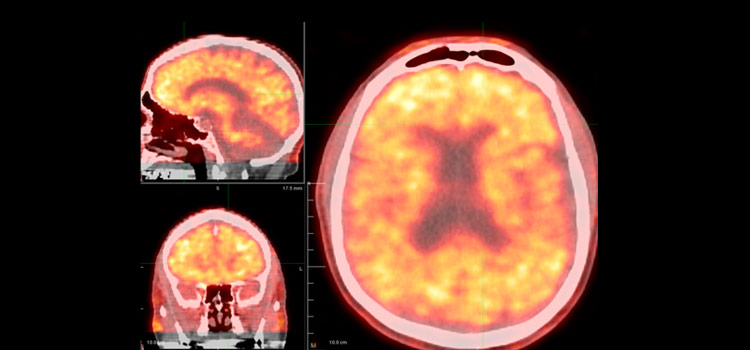 Cognitive Neuroscience Photo