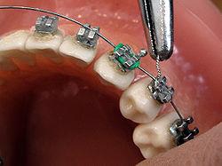Orthodontics Photo