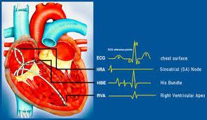 Cardic Electrophysiology  Photo