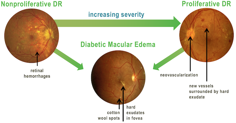 Genetical Disorders of Eye Photo