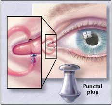 Ocular pharmacotherapy Photo