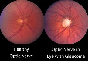 Ocular Diseases Photo