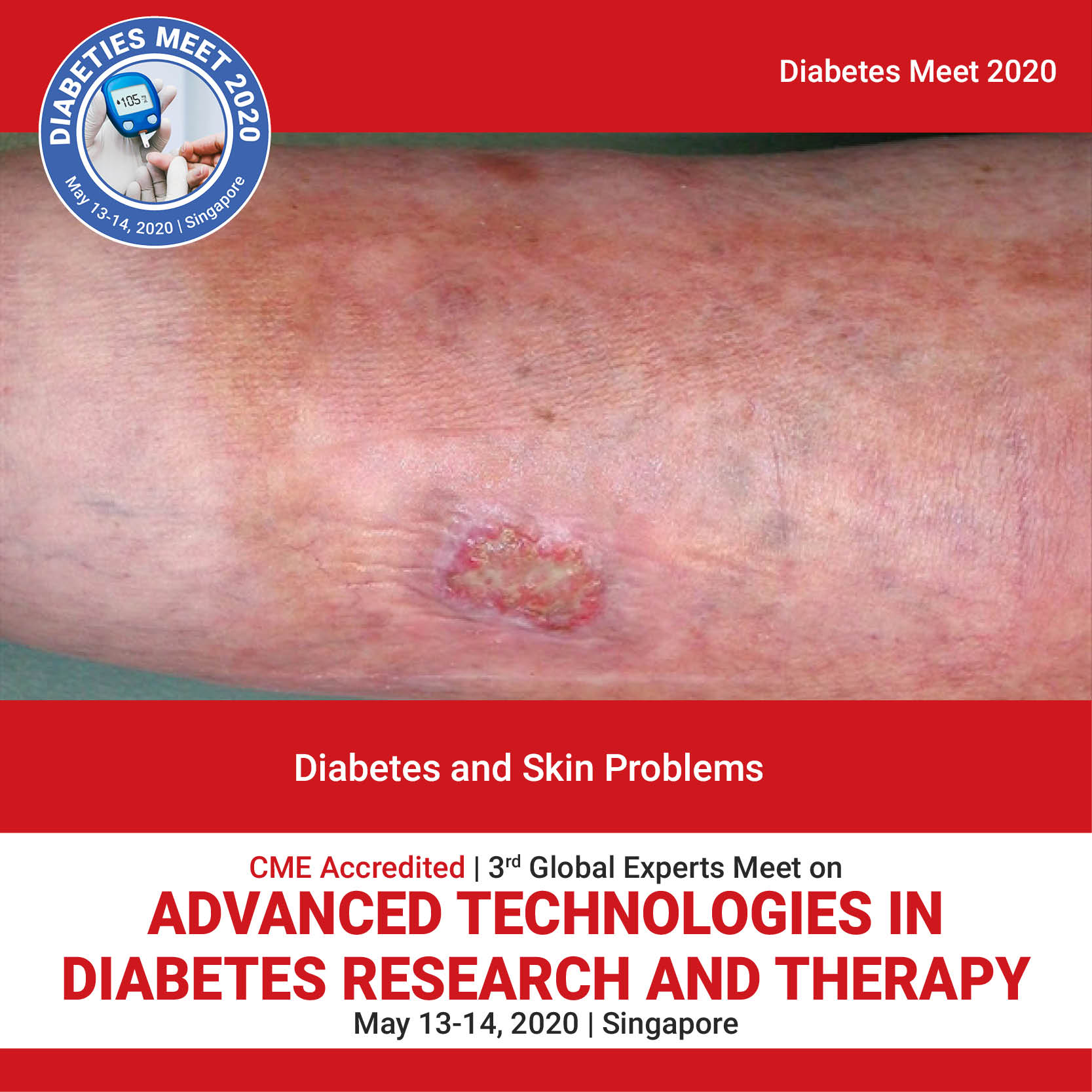 Diabetes and Skin problems Photo