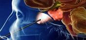 Neuro-surgery  Photo